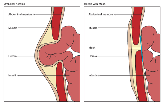 how to prepare for inguinal hernia surgery